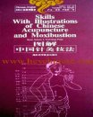 Skills of Chinese Acupuncture and Moxibustion, Chinese-English